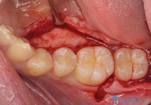 [骨隆起除去手術 ]  舌のスペースを確保するの治療中