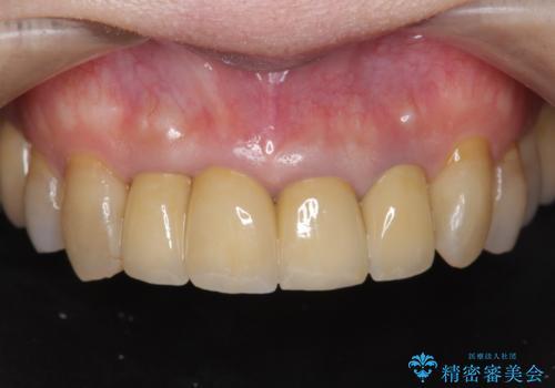 老朽化した前歯のセラミック治療やりかえの治療後