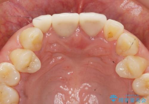 [根管治療・セラミッククラウン]  他院で抜くしかないと言われた歯の治療の治療後