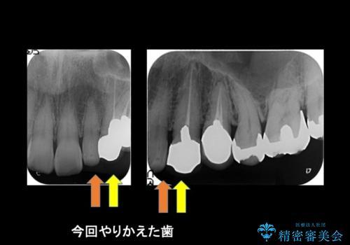 前歯が左右対称じゃない 保険の被せ物をきれいにしたい ホワイトニング併用の治療前