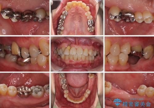 歯周病改善のための総合歯科治療の治療前