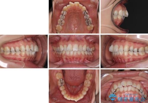 前歯の突出を軽減 インビザラインによる抜歯矯正の治療前
