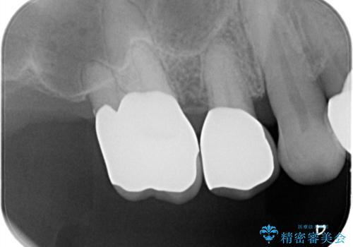 歯周病の進行した歯の抜歯。オールセラミッククラウンの治療後