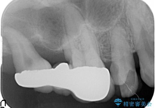 歯周病の進行した歯の抜歯。オールセラミッククラウンの治療前
