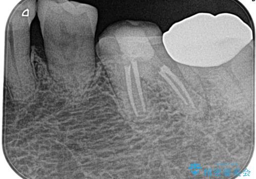 奥歯がズキズキ痛い 根管治療の治療後