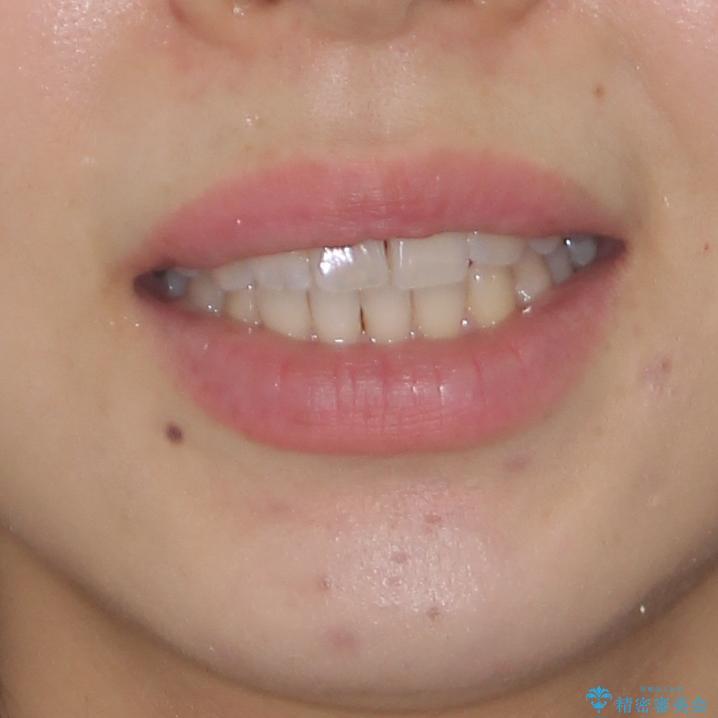 気になる上の歯を改善 インビザライン矯正の治療後(顔貌)