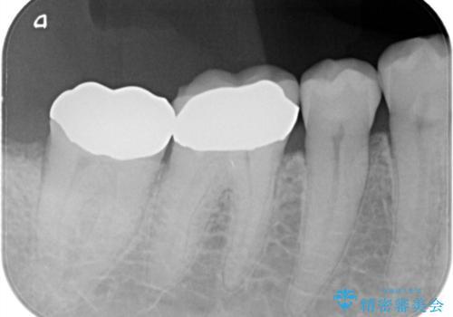 虫歯の治療 ゴールドクラウンの治療後