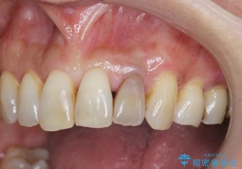 [歯の変色]  根管治療 セラミッククラウンの製作の治療前