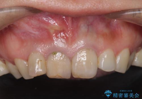 [根管治療・セラミッククラウン]  他院で抜くしかないと言われた歯の治療の治療前