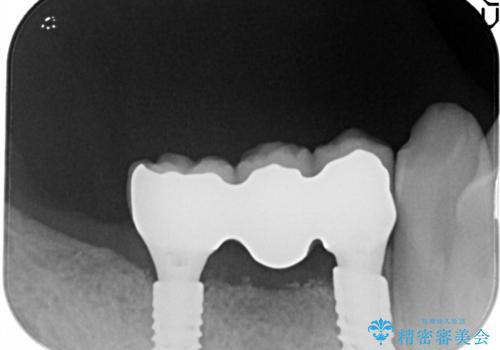 奥歯がなくなり咬めない インプラント治療による咬み合わせの回復の治療後