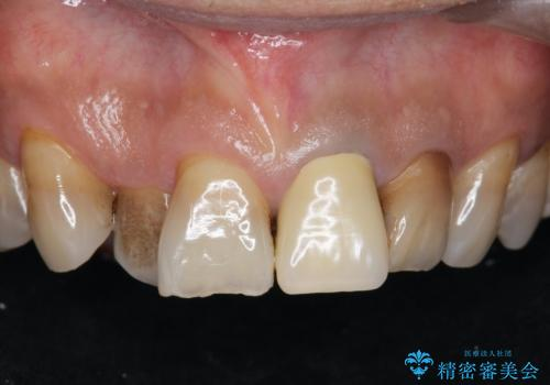 [前歯 セラミック治療]  すぐに前歯が取れる きちんと治療して欲しいの症例 治療前