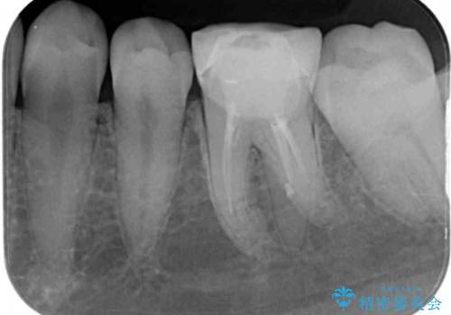 形が気に入らない 奥歯のオールセラミッククラウンの治療前