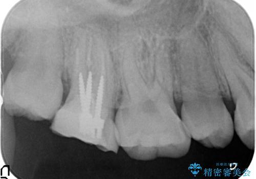 オールセラミッククラウン 鈍痛が続く奥歯の治療の治療前