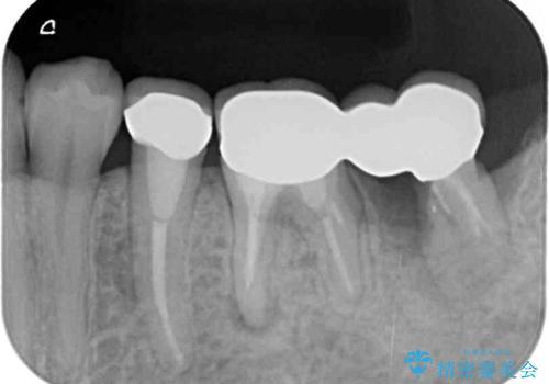 痛みを感じる奥歯 根管治療とインプラント治療の治療前