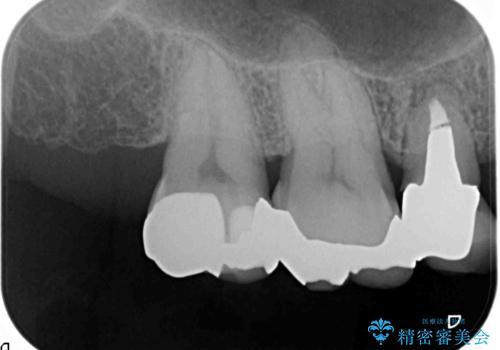口の中の金属を外したい セラミッククラウンによる治療の治療前