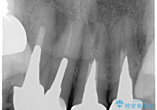 老朽化した前歯のセラミック治療やりかえの治療前