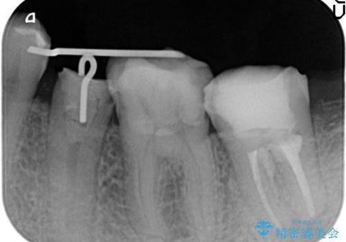 オールセラミッククラウン 歯の挺出・歯周外科による歯茎より深い虫歯の治療の治療中