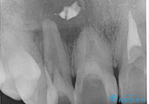 [根管治療・セラミッククラウン]  他院で抜くしかないと言われた歯の治療の治療中