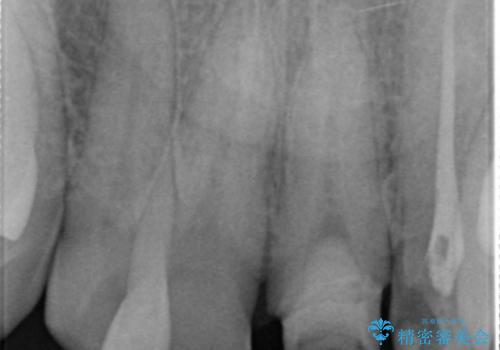 [前歯 セラミック治療]  すぐに前歯が取れる きちんと治療して欲しいの治療中