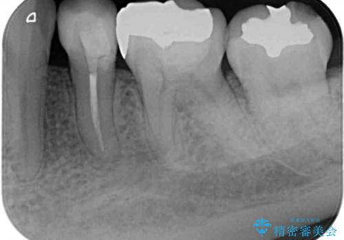 矯正の後戻りの改善と銀歯をセラミックにの治療前