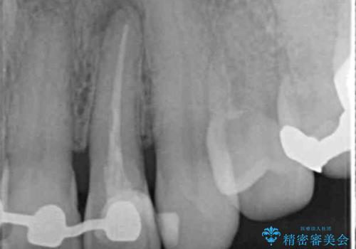 [歯の変色]  根管治療 セラミッククラウンの製作の治療中