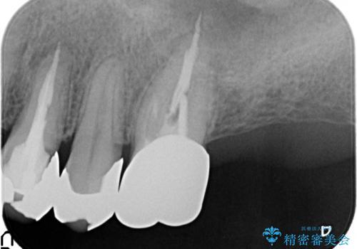 PGA(ゴールド)クラウン 脱離した銀歯の治療の治療前