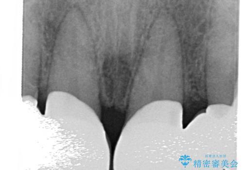 オールセラミッククラウン 部分矯正とセラミックによる前歯部の見た目の改善の治療後