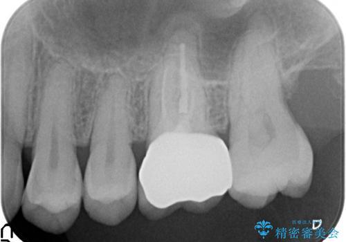 オールセラミッククラウン 失活歯の根管治療の治療後