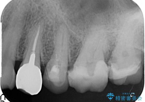 放置した虫歯 根管治療 フルジルコニアクラウンの治療前