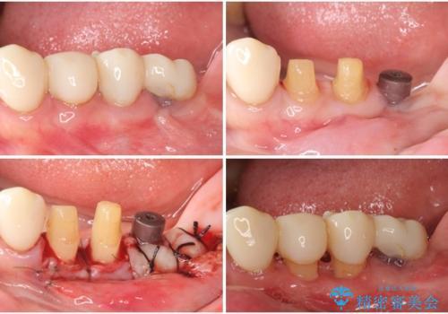 歯周病改善のための総合歯科治療の治療中