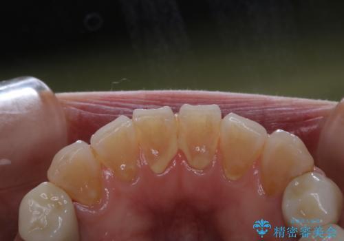 口臭予防のため歯科医院での歯の掃除 PMTCの治療前