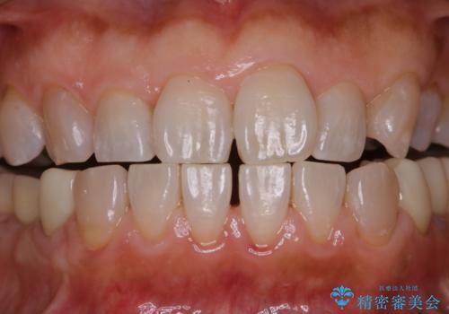 口臭予防のため歯科医院での歯の掃除 PMTCの治療後