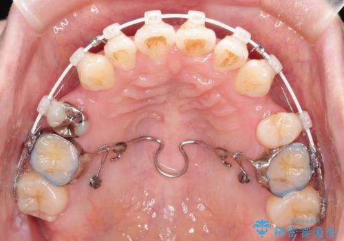 ワイヤーによる出っ歯の矯正 前歯でかめるようにの治療中