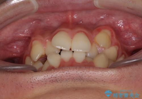 八重歯を治したい 目立たないワイヤー装置での抜歯矯正の治療前