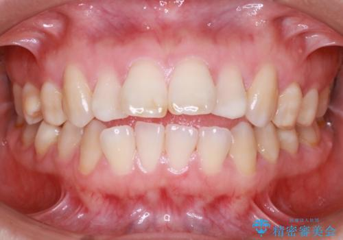 歯が前に出てて、口が閉じない 抜歯矯正による口元の改善の治療前