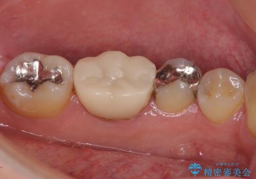 保険診療で装着した奥歯の白いクラウン 痛みが続くためセラミッククラウンへの治療前