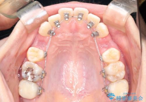 歯が前に出てて、口が閉じない 抜歯矯正による口元の改善の治療中