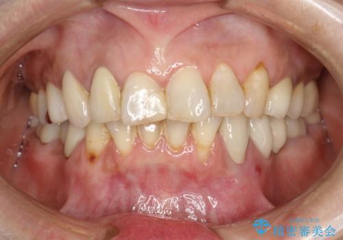 PMTCで歯を綺麗にの治療前