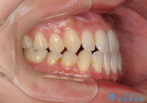 前歯のデコボコ インビザラインによる矯正治療の治療前