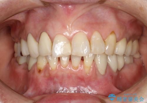 PMTCで歯を綺麗にの治療後