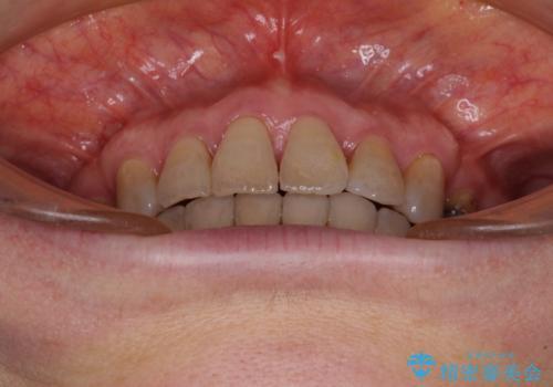 閉じにくい口元を改善したい ワイヤー装置での抜歯矯正の治療後
