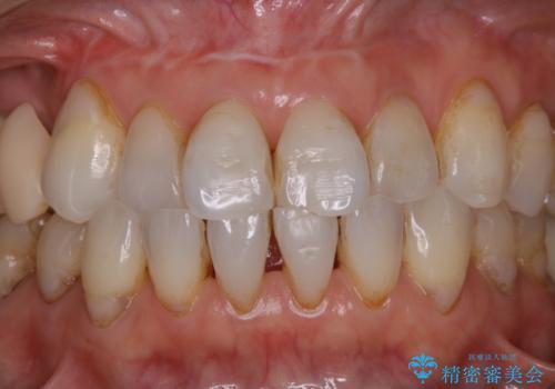 歯のクリーニングPMTC60分コースの治療前