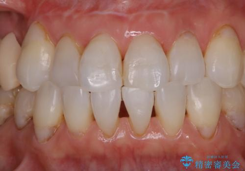 歯のクリーニングPMTC60分コースの治療後