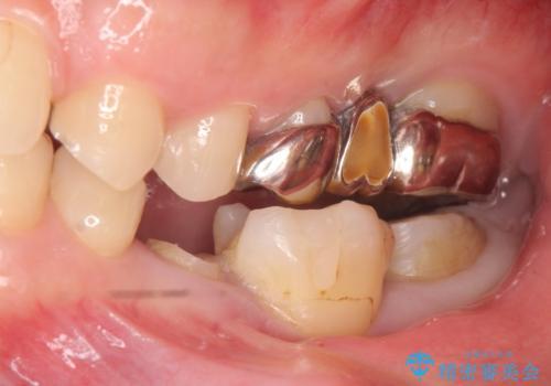 オールセラミッククラウン 歯の挺出・歯周外科による歯茎より深い虫歯の治療の治療前