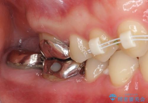 隙間だらけの歯列をきれいに インビザライン矯正とセラミック補綴治療の治療中