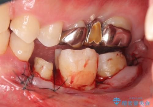 オールセラミッククラウン 歯の挺出・歯周外科による歯茎より深い虫歯の治療の治療後