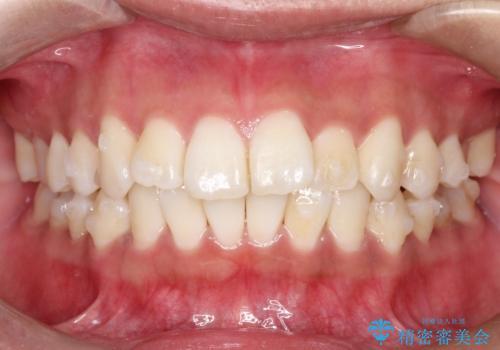 がたがたをインビザラインで整った歯並びへの治療中