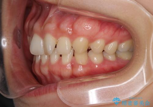隙間だらけの歯列をきれいに インビザライン矯正とセラミック補綴治療の治療前