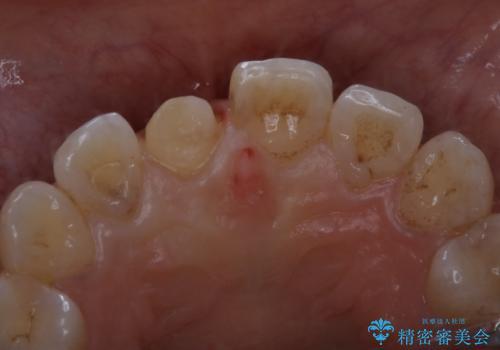 何度も欠けてしまう前歯を被せ物で治療の治療中