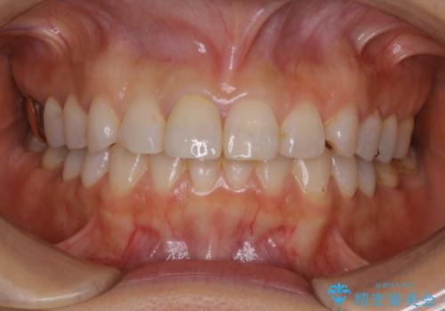 何度も欠けてしまう前歯を被せ物で治療の治療後